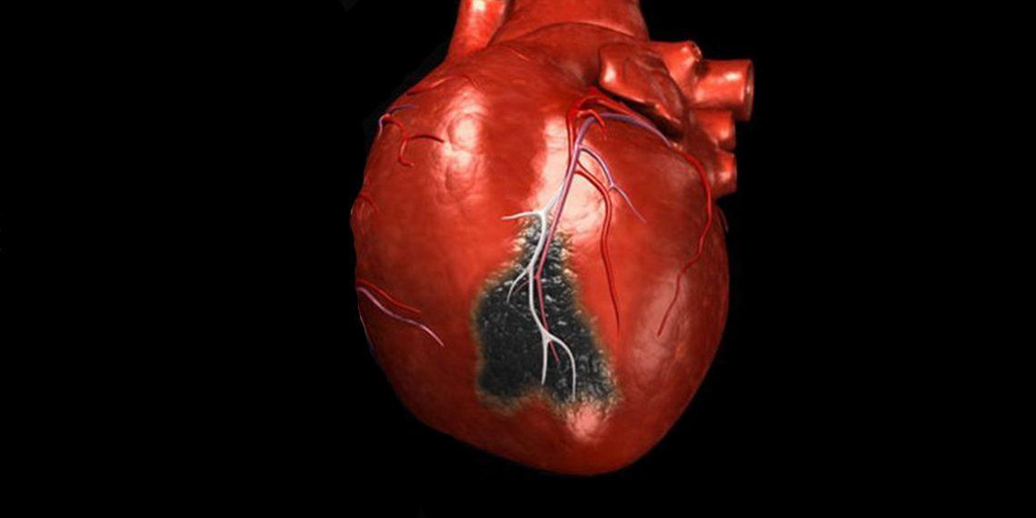 8 признаков инфаркта миокарда, при которых нужно звонить в скорую